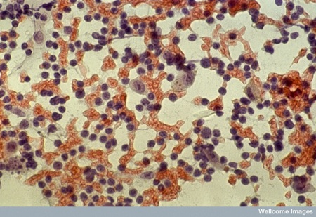 Malignant melanoma cells in lymph node
