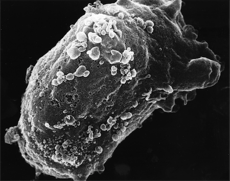 HIV budding from a lymphocyte