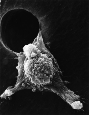 SEM of metastatic cancer cell, NCI