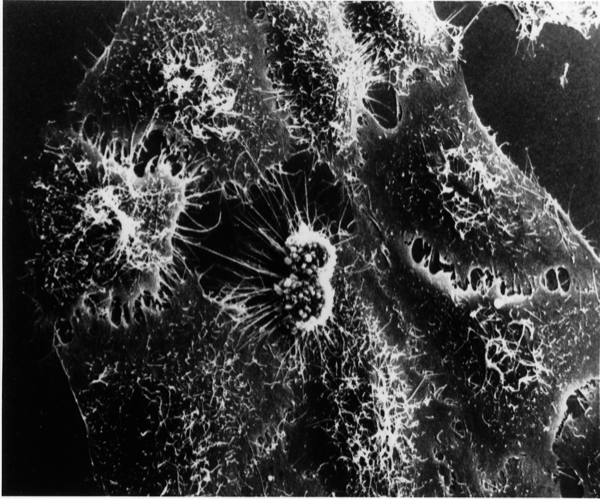 Hela cells infected with adenovirus