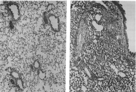 Cotton rat + adenovirus lungs (Ginsberg et al 1989)