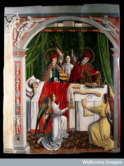 Saints Cosmas and Damian performing a miraculous cure by transplantation of a leg/The Master of Los Balbases.