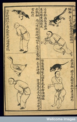 Illustrated Acupuncture Made Easy, Li Shouxian (Qing period, 1644-1911)