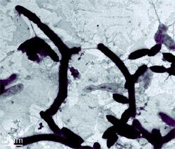 Novosphingobium aromaticivorans