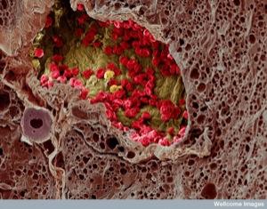 Melanoma blood vessel