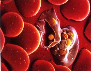 Plasmodium & red blood cells