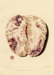 The brain (William Say, 1829)