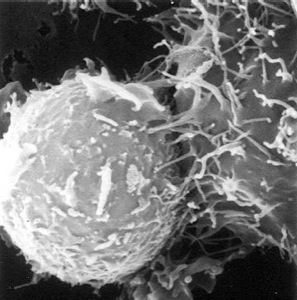 CTL attacking a tumor cell