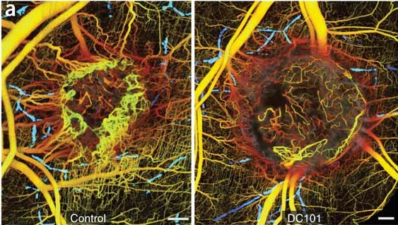 3D tumor vasculature with OFDI