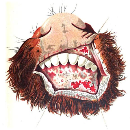 Rinderpeste (1880)
