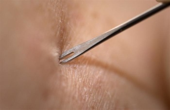 BIfurcated needle