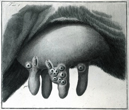Cowpox (Wellcome Images)