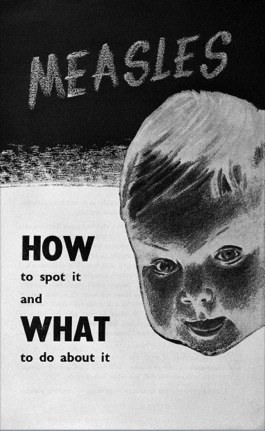 How to spot measles