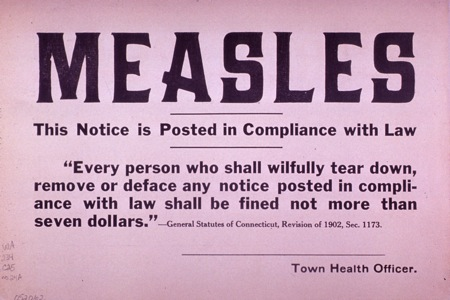 Measles quarentine