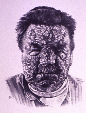 Confluent Smallpox (Bramwell 1892)
